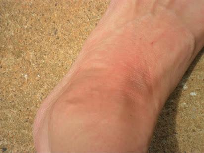 Почему горят ноги ниже колен?,Post navigation,Свежие записи