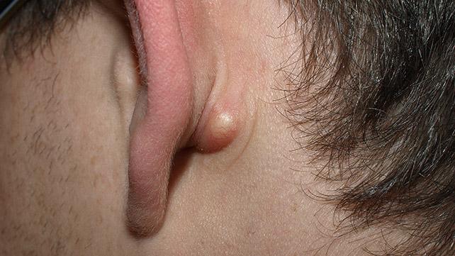 Крупный прыщ за ухом представляет собой атерому
