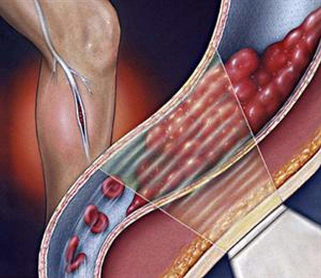 Эффективность лечения суставов желатином в домашних условиях