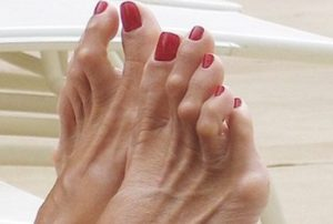 Лечение деформации молоткообразных пальцев на ногах
