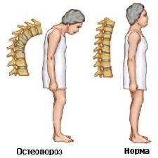 Остеопороз что это такое как лечить?