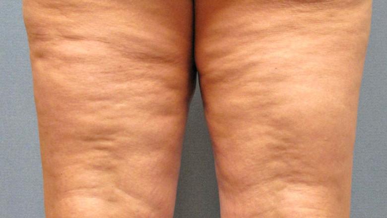 Дряблую кожу на ногах можно подтянуть