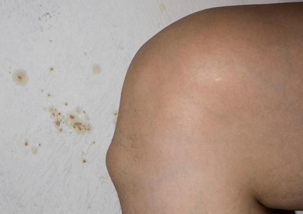 Уплотнение под кожей на спине в области позвоночника что это такое?,Post navigation,Свежие записи