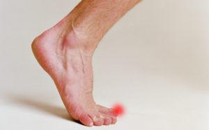 Что предпринимать при вывихе пальца на ноге