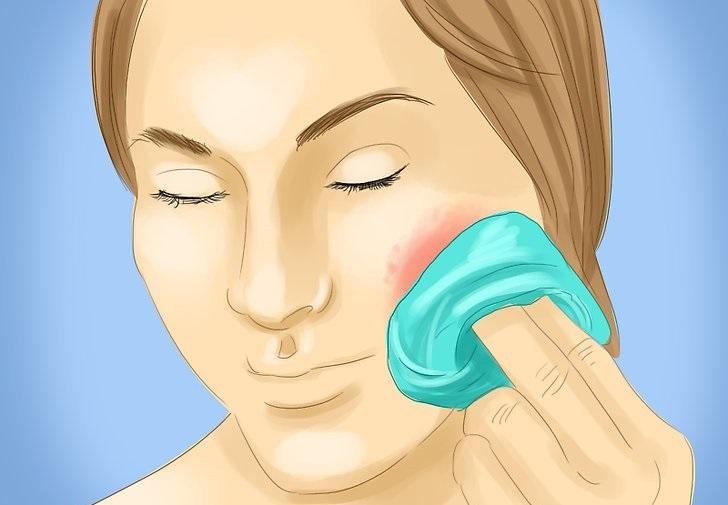 Аллергическая сыпь на лице,Post navigation,Свежие записи