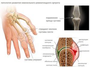 Причины развития и способы лечения артрита у детей
