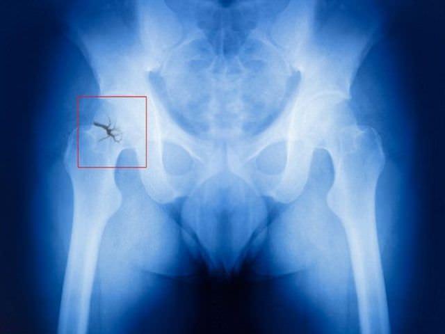 Что нужно делать при вколоченном переломе шейки бедра