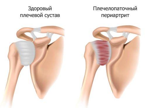 Суставное заболевание плечелопаточный периартрит