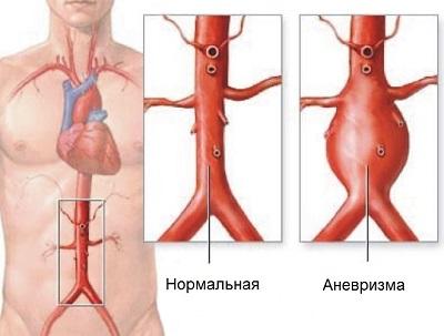 Аневризмa аорты