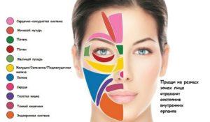 Прыщи на подбородке у женщин причины появления и как лечить,Post navigation,Свежие записи