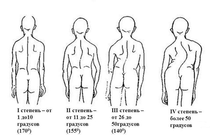 Как происходит диагностика и лечение сколиоза 3-й степени