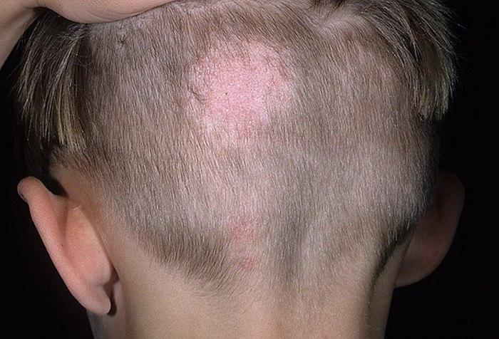 Выпадение волос бывает вызвано педикулезом