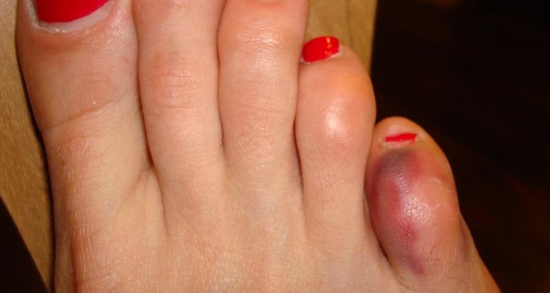 Боли в мизинце ноги бывают вызваны артритом