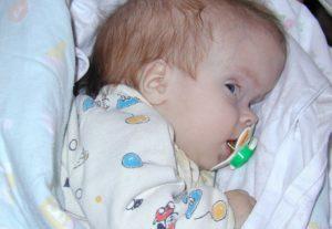 Причины и последствия родовой травмы шейного отдела позвоночника у новорожденных