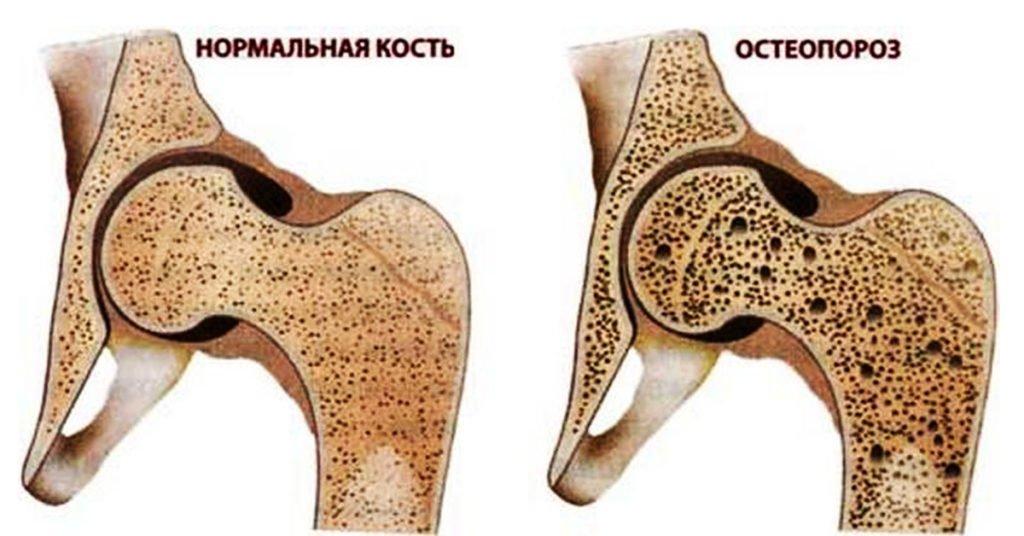 Список разрешенных упражнений при остеопорозе