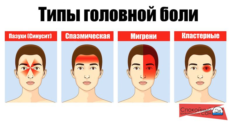 Особенность головной боли заключается в том, что возможно причина возникновения симптома кроется вовсе не в недосыпе. При систематических появлениях цефалгии что делать подскажет врач после проведения комплексной диагностики и постановки диагноза. В общем случае головную боль разделают на несколько категорий в зависимости от ее характера