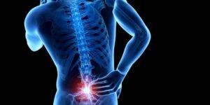 Что такое дорзальная протрузия межпозвонкового диска и как ее лечить