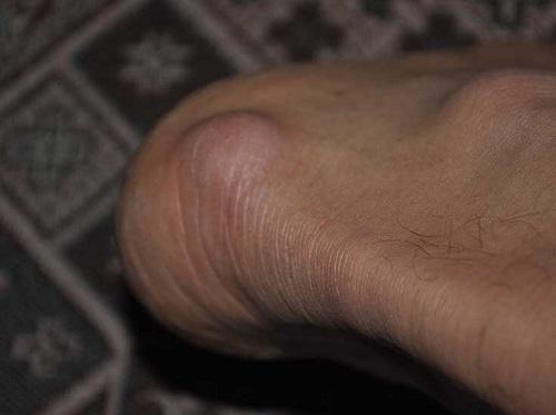 Почему в месте перелома на ноге появилась шишка,Post navigation,Свежие записи